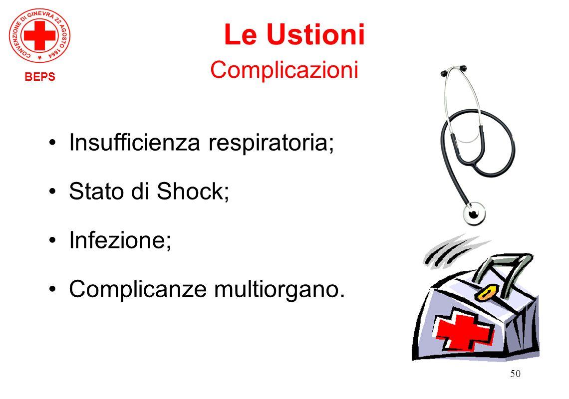 Le Ustioni Complicazioni Insufficienza respiratoria; Stato di Shock;