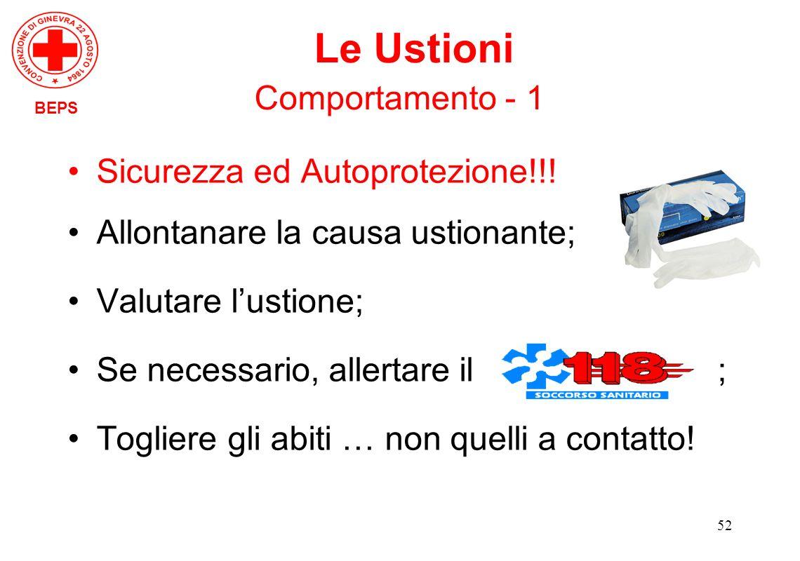 Le Ustioni Comportamento - 1 Sicurezza ed Autoprotezione!!!