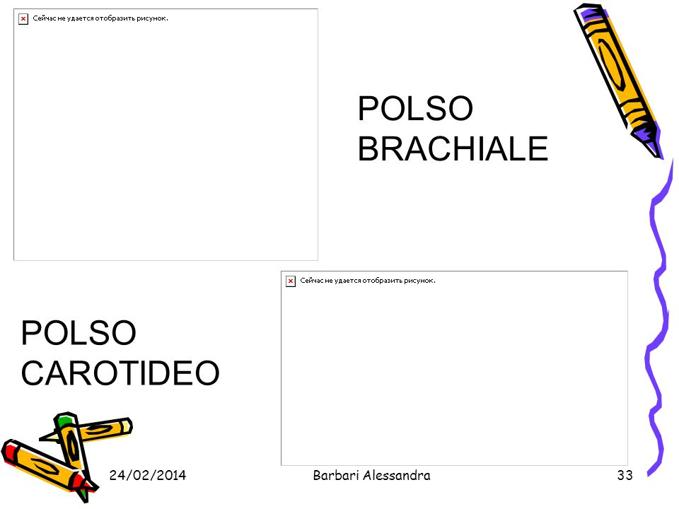 POLSO BRACHIALE POLSO CAROTIDEO 27/03/2017 Barbari Alessandra