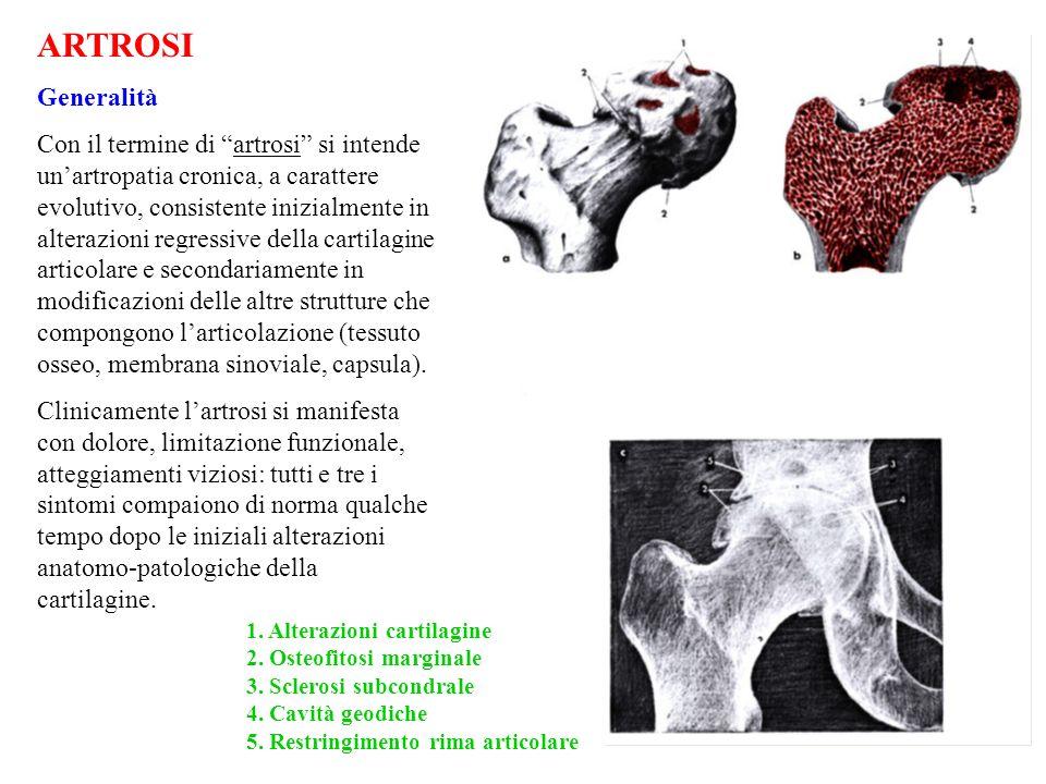 ARTROSI Generalità.