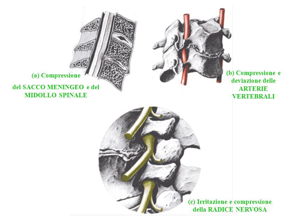 (b) Compressione e deviazione delle ARTERIE VERTEBRALI
