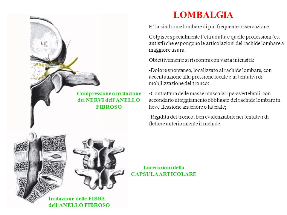 LOMBALGIA E' la sindrome lombare di più frequente osservazione.