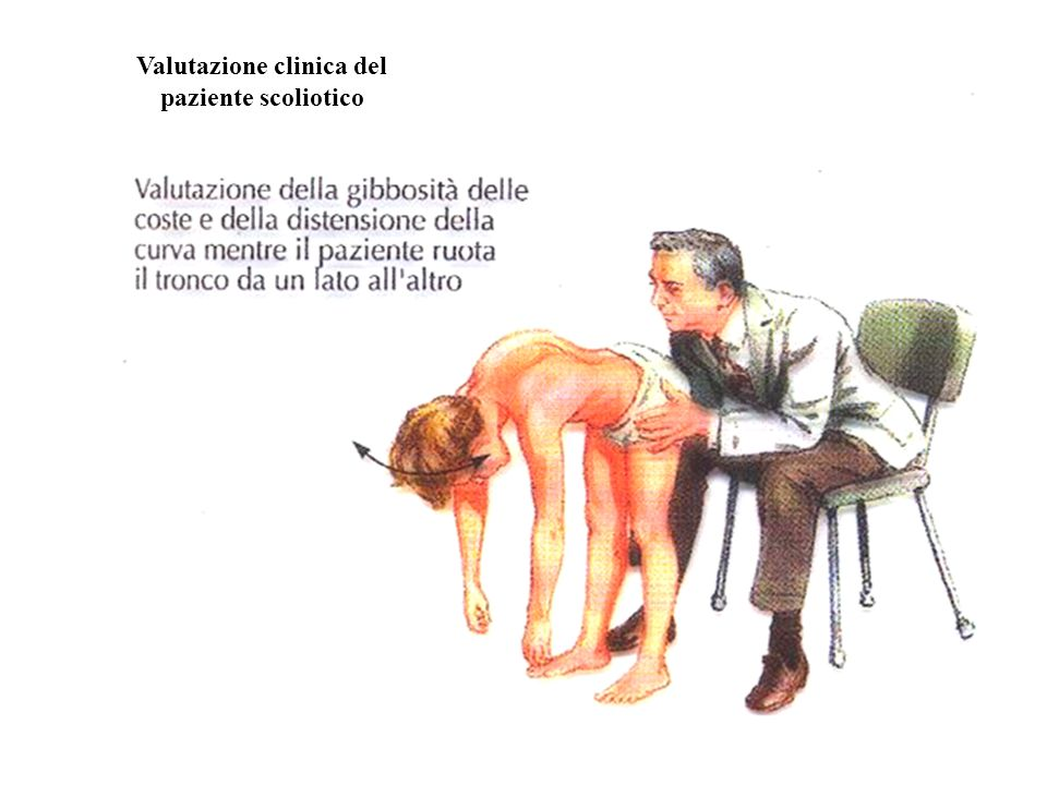 Valutazione clinica del paziente scoliotico