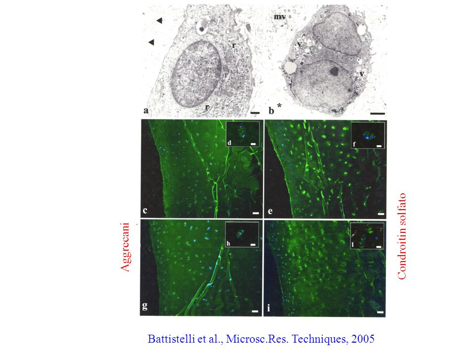 Battistelli et al., Microsc.Res. Techniques, 2005