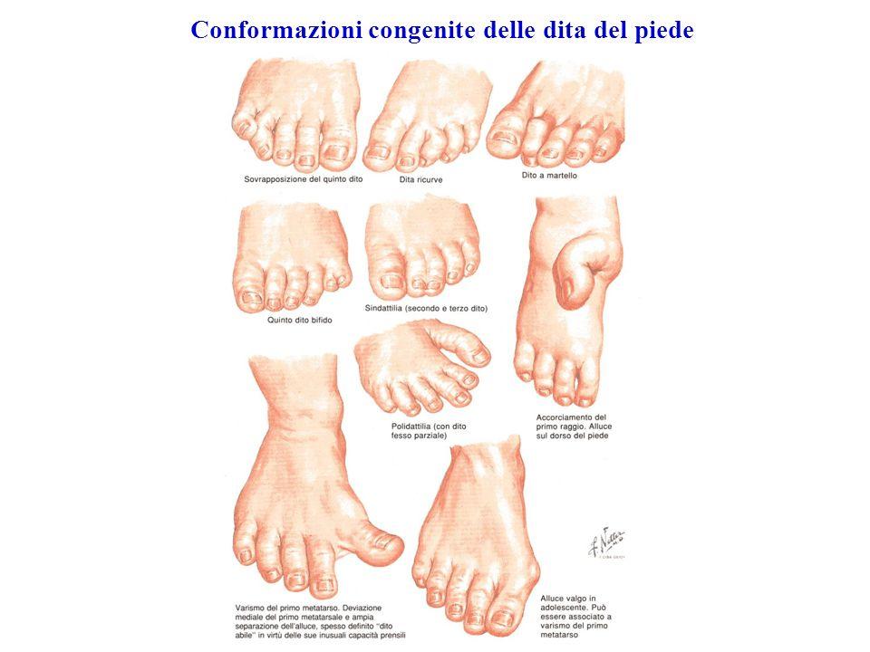 Conformazioni congenite delle dita del piede
