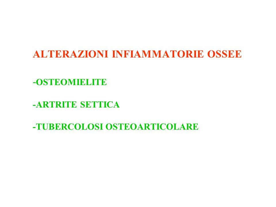 ALTERAZIONI INFIAMMATORIE OSSEE -OSTEOMIELITE