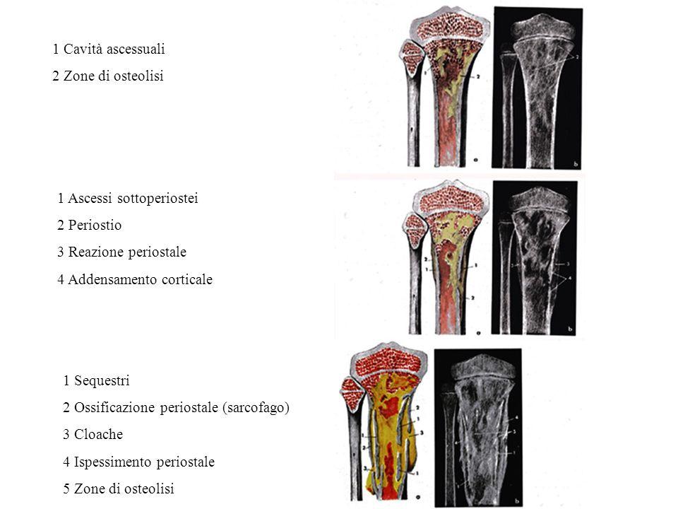 1 Cavità ascessuali 2 Zone di osteolisi. 1 Ascessi sottoperiostei. 2 Periostio. 3 Reazione periostale.