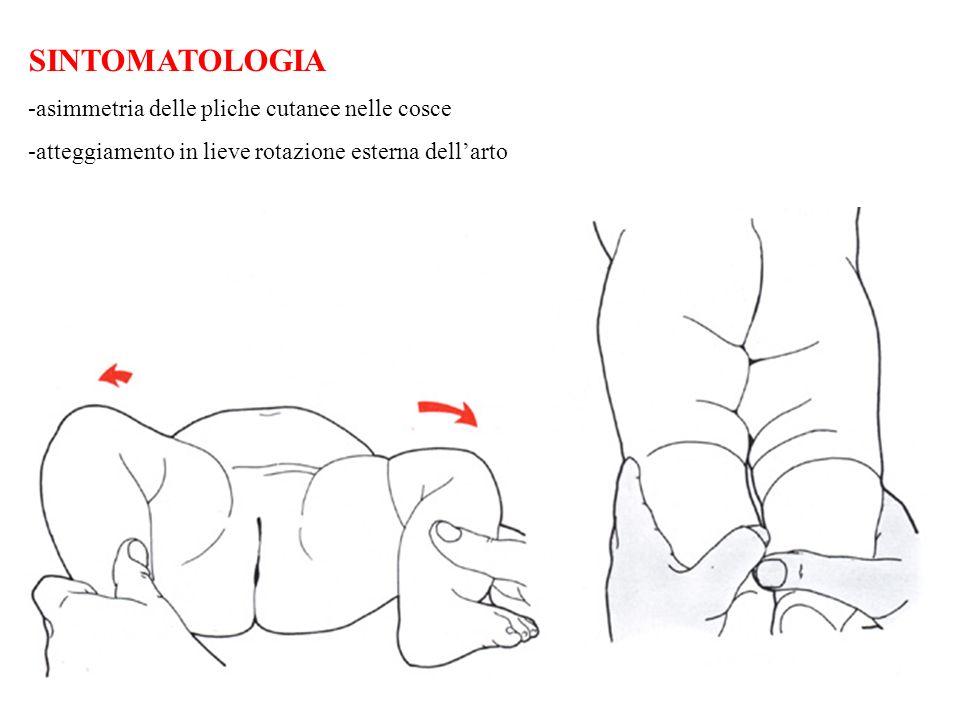 SINTOMATOLOGIA -asimmetria delle pliche cutanee nelle cosce
