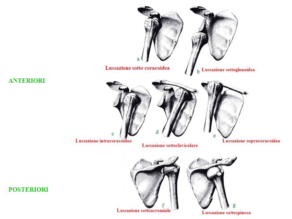 ANTERIORI POSTERIORI Lussazione sotto coracoidea