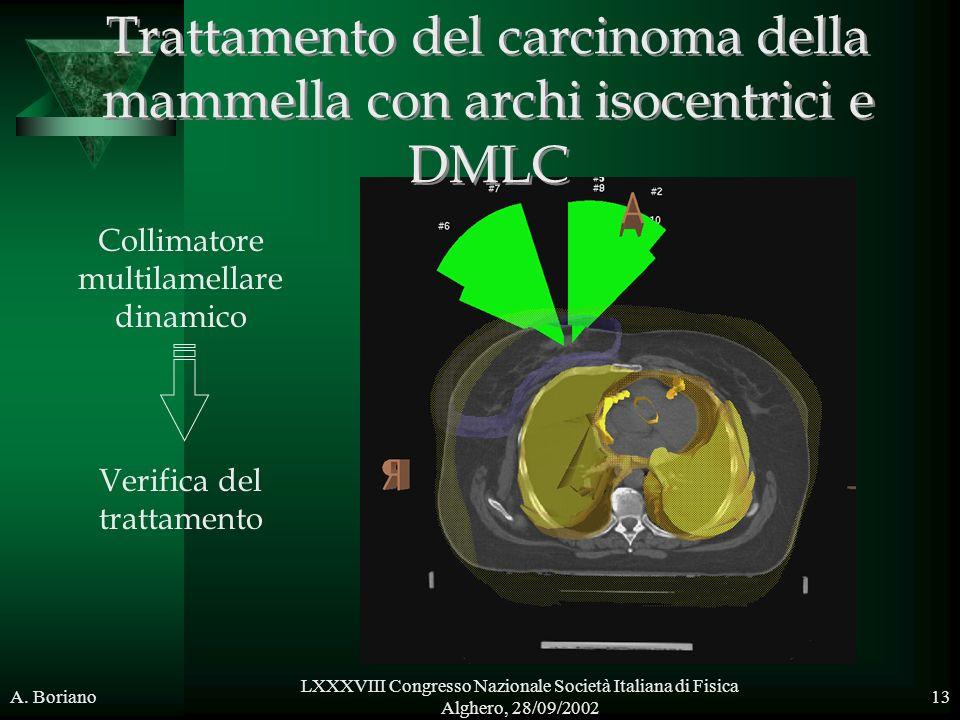 Trattamento del carcinoma della mammella con archi isocentrici e DMLC