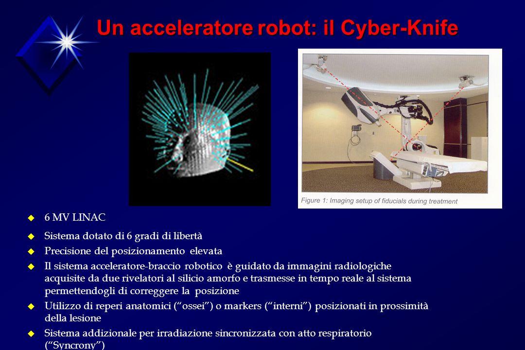 Un acceleratore robot: il Cyber-Knife