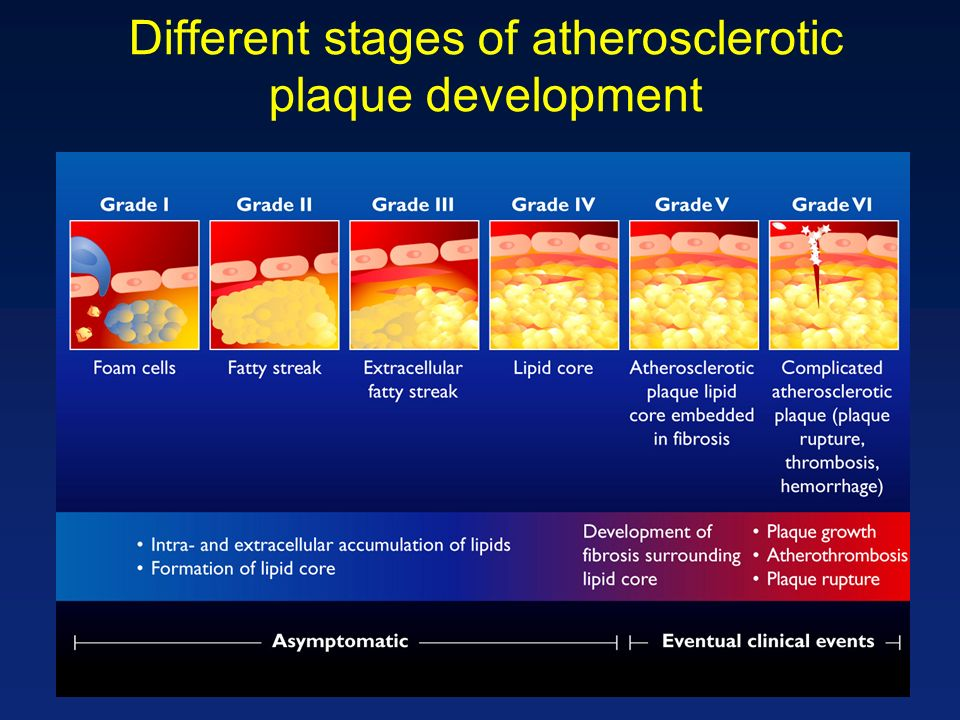 Different stages of atherosclerotic plaque development