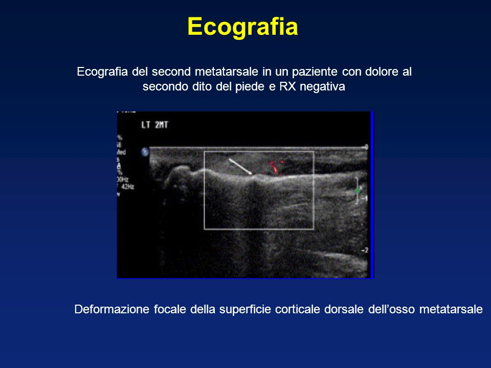 Ecografia Ecografia del second metatarsale in un paziente con dolore al secondo dito del piede e RX negativa.