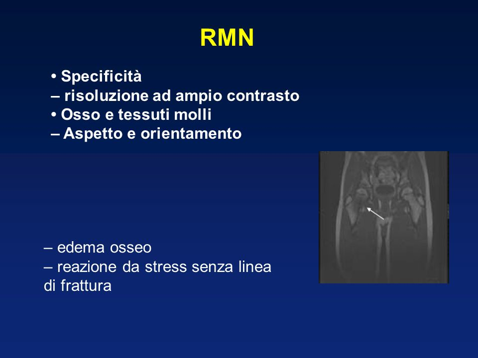 RMN • Specificità – risoluzione ad ampio contrasto