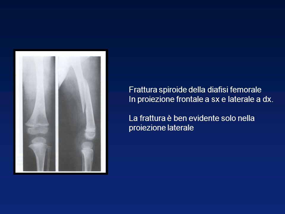 Frattura spiroide della diafisi femorale