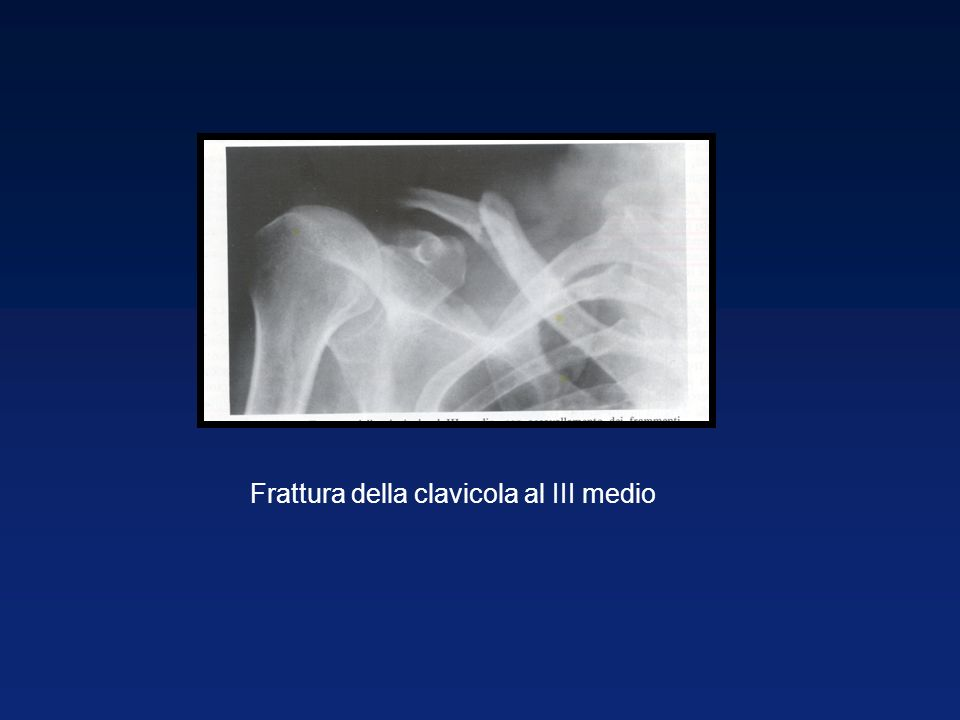 Frattura della clavicola al III medio