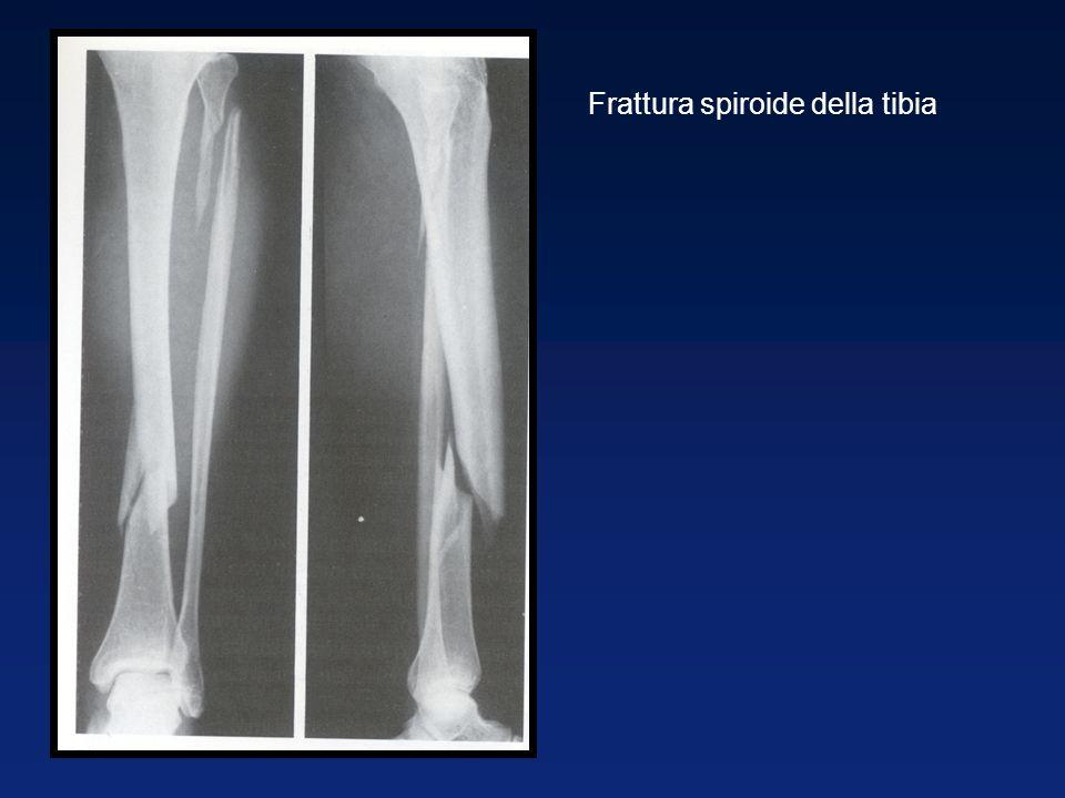 Frattura spiroide della tibia