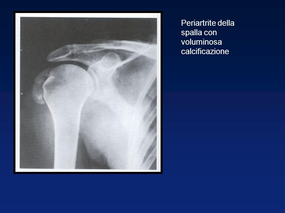 Periartrite della spalla con voluminosa calcificazione