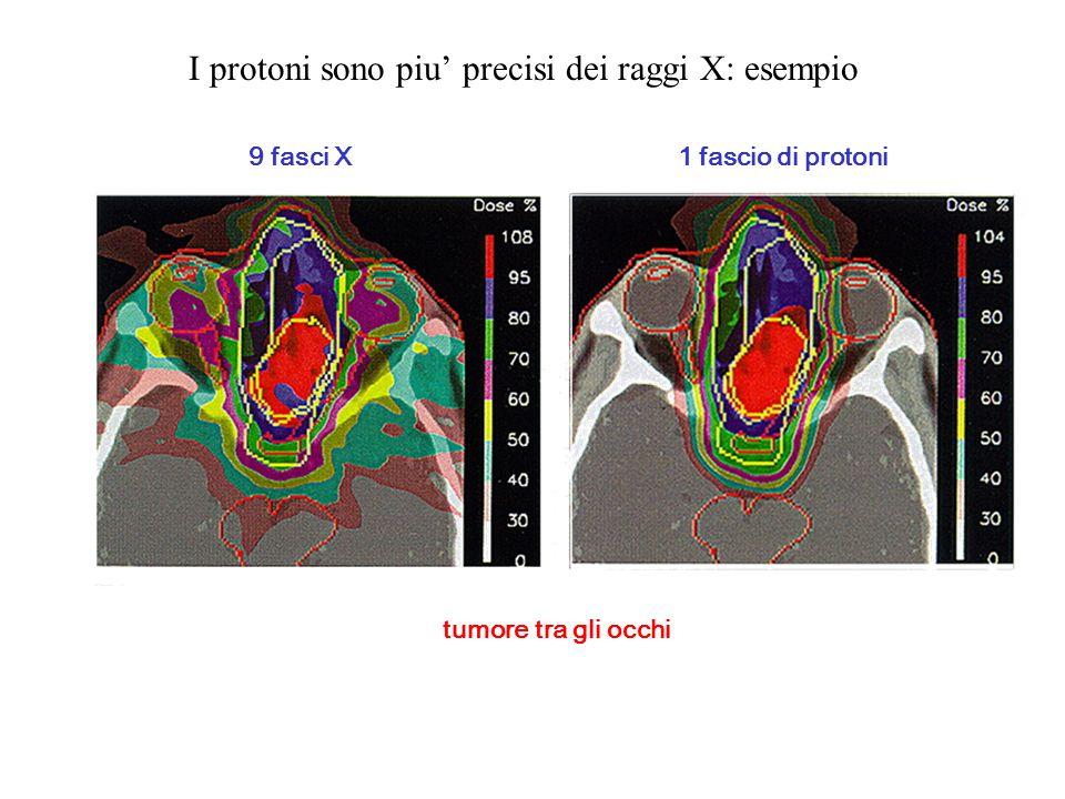 I protoni sono piu' precisi dei raggi X: esempio