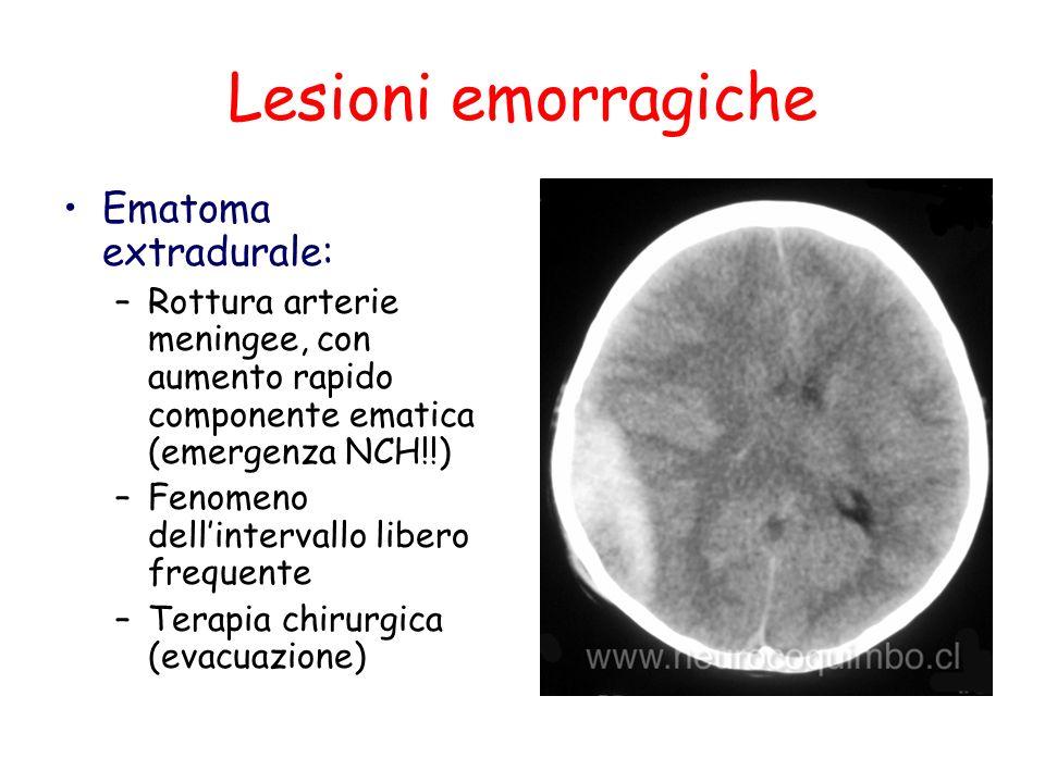 Lesioni emorragiche Ematoma extradurale:
