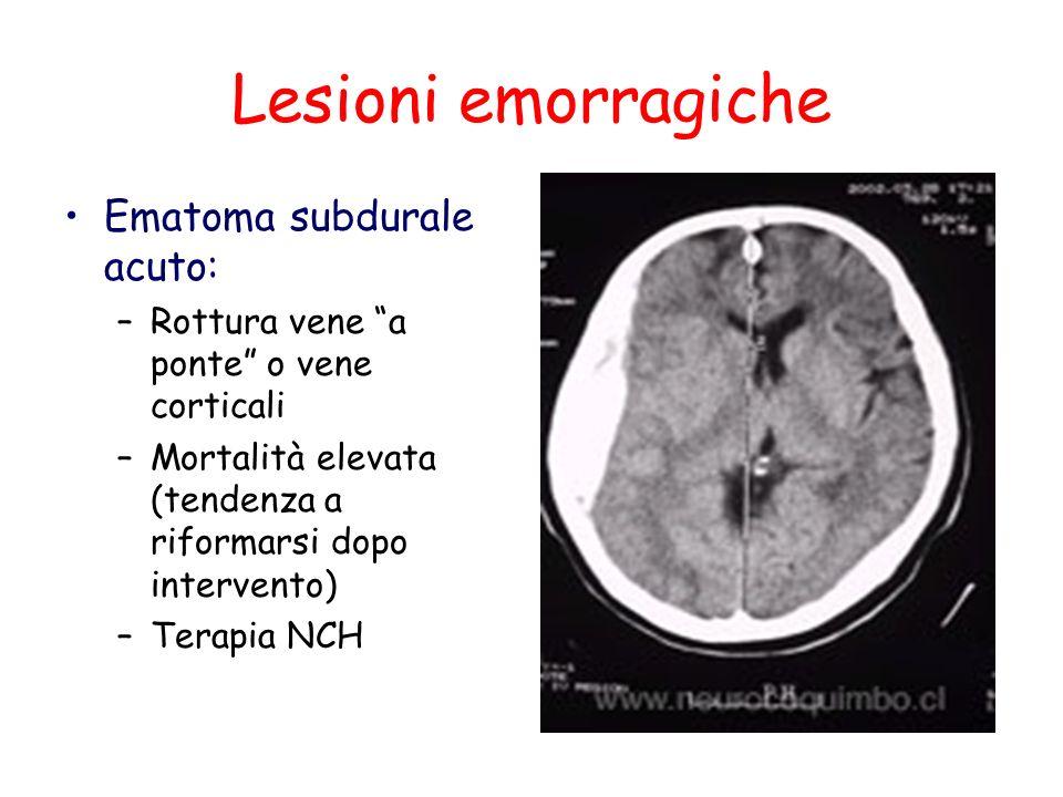 Lesioni emorragiche Ematoma subdurale acuto: