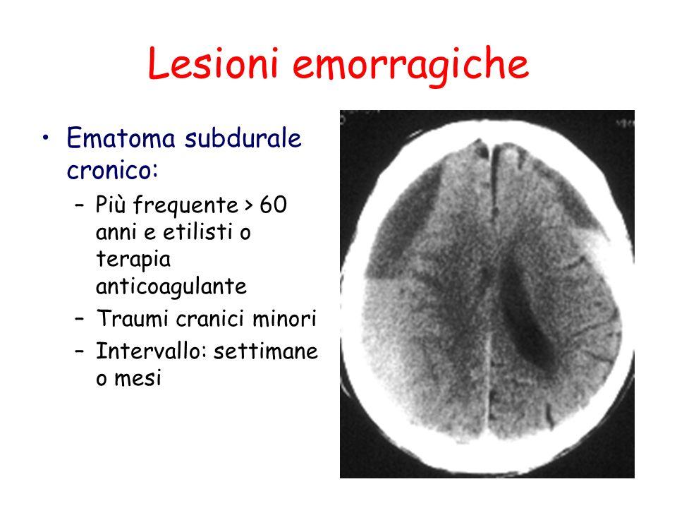 Lesioni emorragiche Ematoma subdurale cronico: