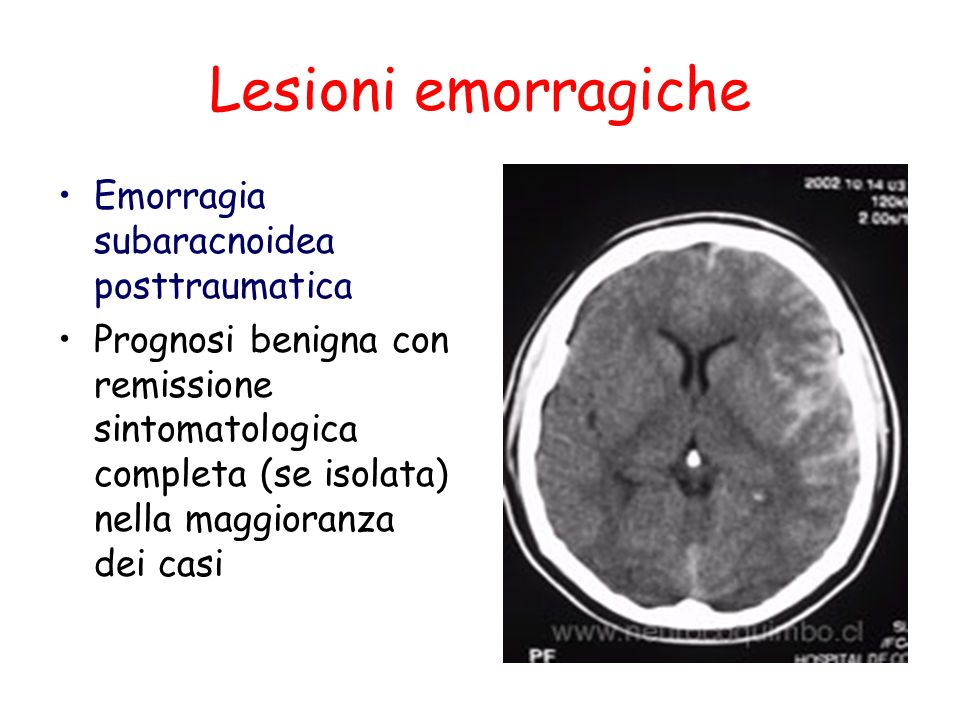 Lesioni emorragiche Emorragia subaracnoidea posttraumatica