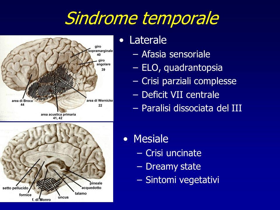 Sindrome temporale Laterale Mesiale Afasia sensoriale