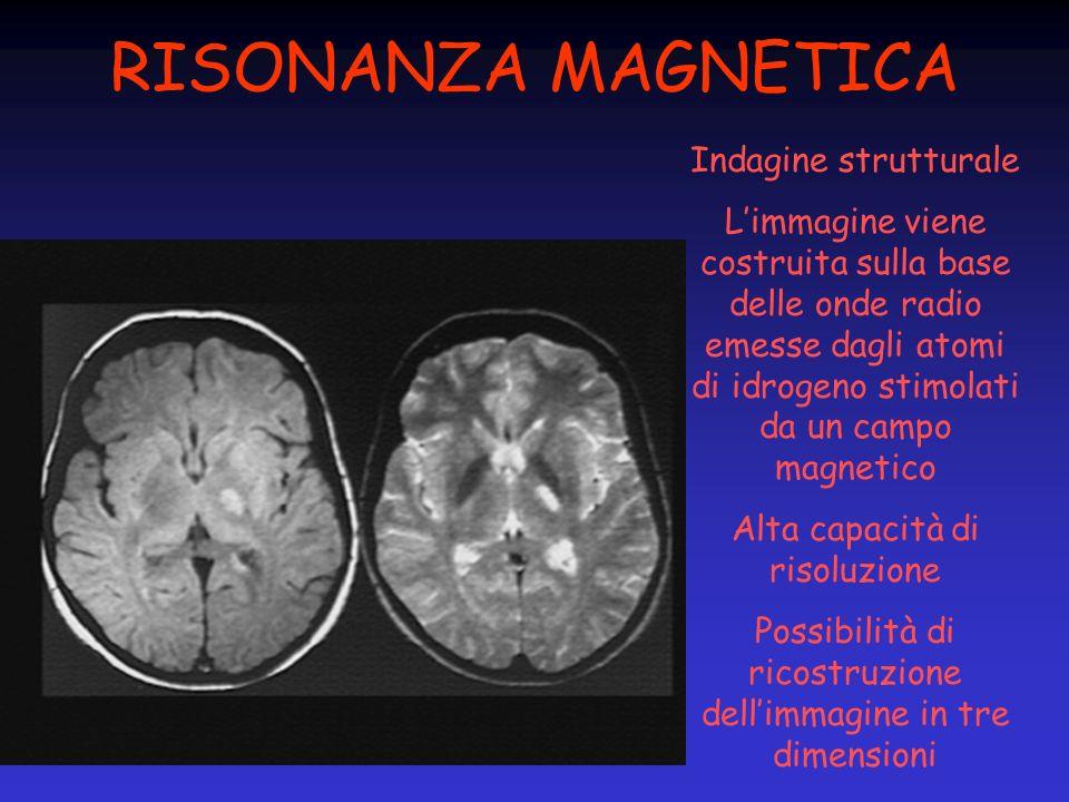 RISONANZA MAGNETICA Indagine strutturale