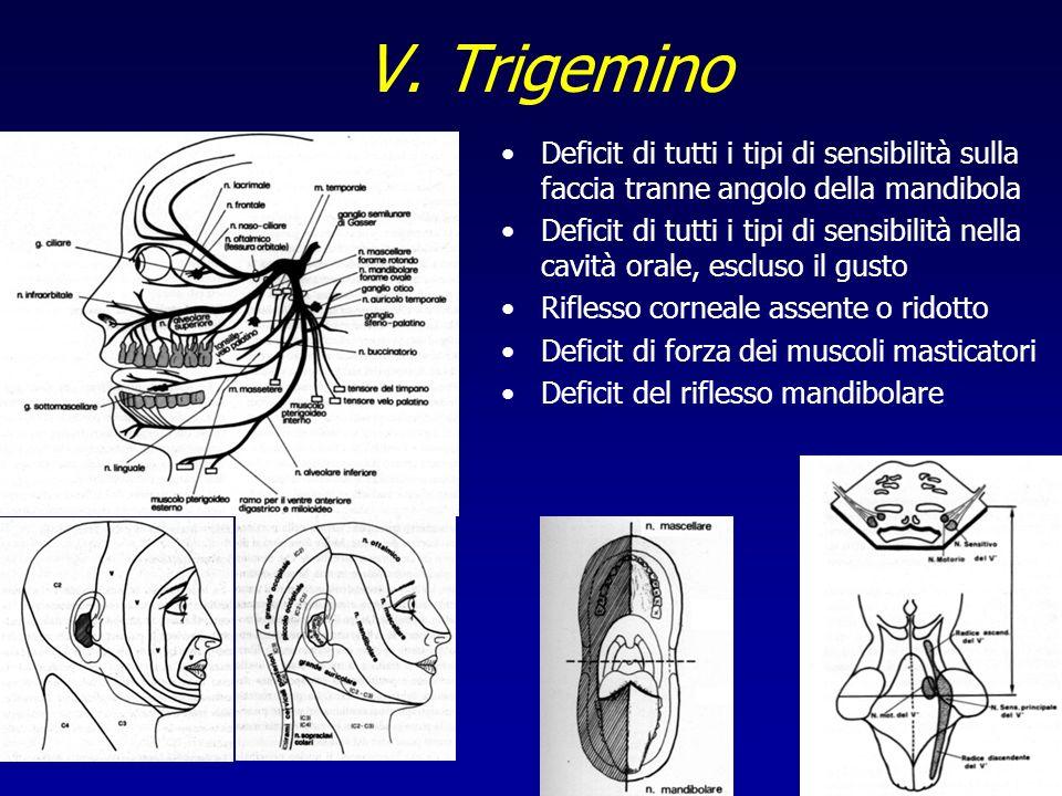 V. Trigemino Deficit di tutti i tipi di sensibilità sulla faccia tranne angolo della mandibola.