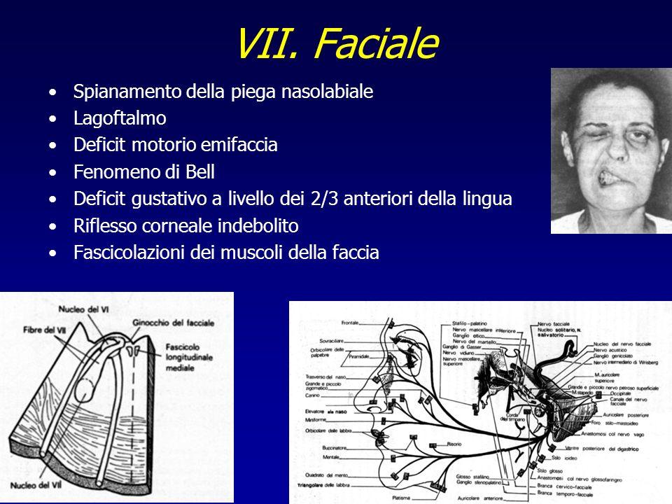 VII. Faciale Spianamento della piega nasolabiale Lagoftalmo