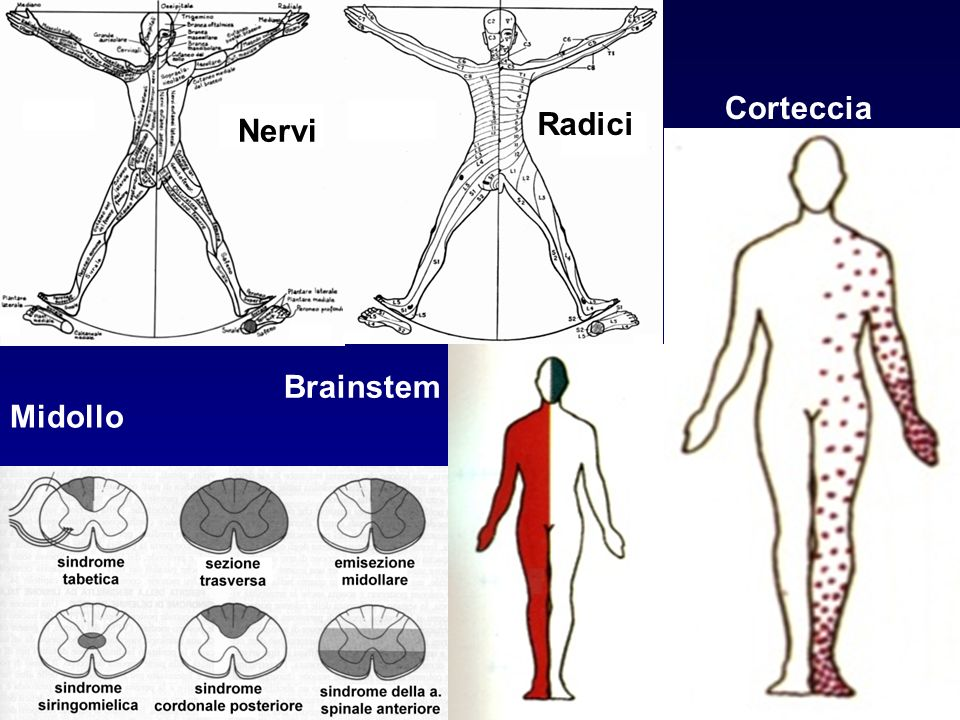 Nervi Radici Corteccia Brainstem Midollo