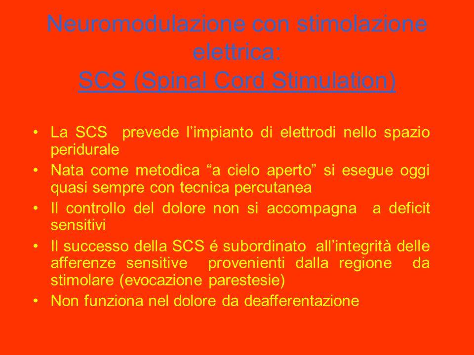 Neuromodulazione con stimolazione elettrica: SCS (Spinal Cord Stimulation)