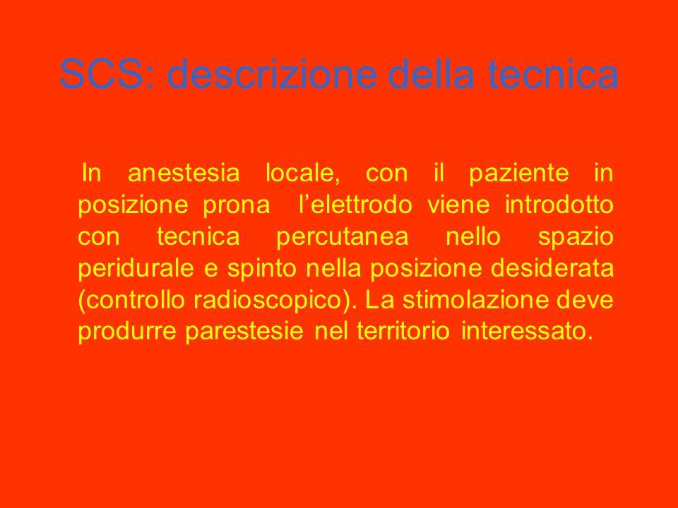SCS: descrizione della tecnica