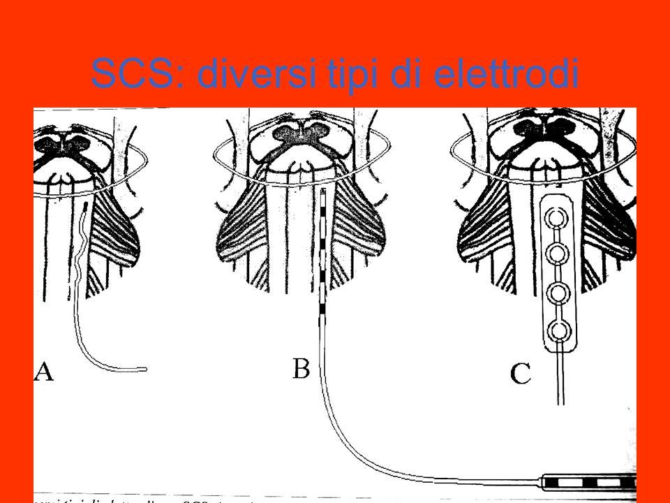 SCS: diversi tipi di elettrodi