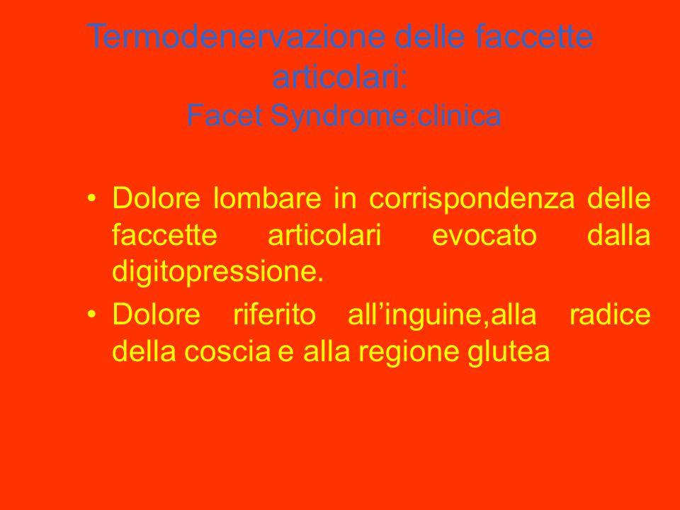 Termodenervazione delle faccette articolari: Facet Syndrome:clinica