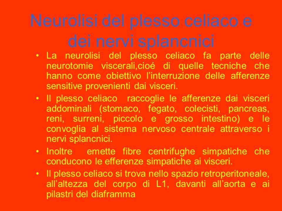 Neurolisi del plesso celiaco e dei nervi splancnici