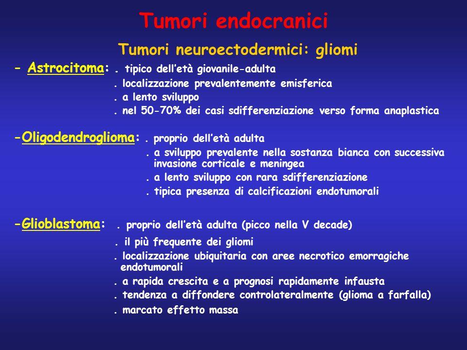 Tumori neuroectodermici: gliomi