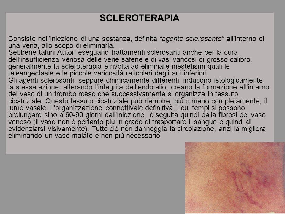 SCLEROTERAPIA Consiste nell'iniezione di una sostanza, definita agente sclerosante all'interno di una vena, allo scopo di eliminarla.