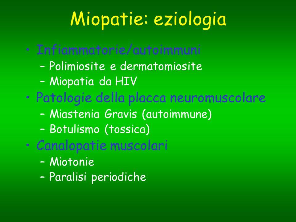Miopatie: eziologia Infiammatorie/autoimmuni