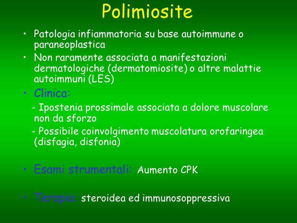Polimiosite Clinica: Esami strumentali: Aumento CPK