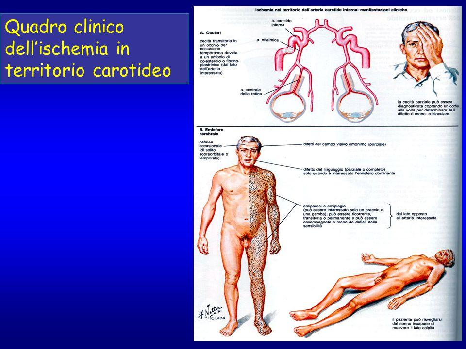 Quadro clinico dell'ischemia in territorio carotideo