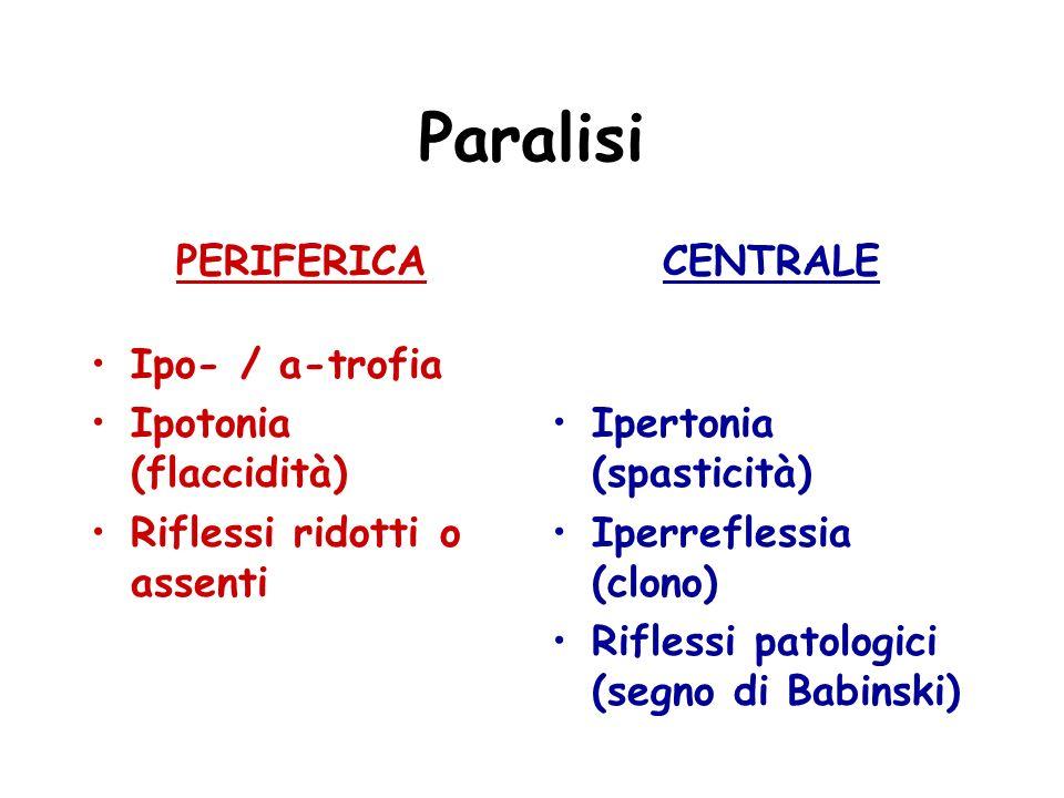 Paralisi PERIFERICA Ipo- / a-trofia Ipotonia (flaccidità)