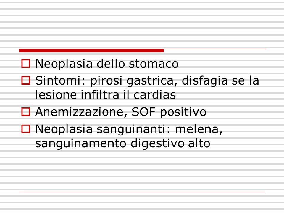 Neoplasia dello stomaco