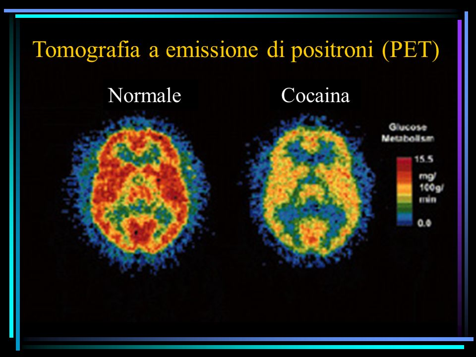 Tomografia a emissione di positroni (PET)