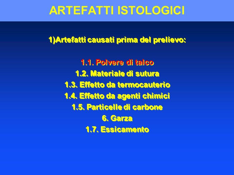 ARTEFATTI ISTOLOGICI 1)Artefatti causati prima del prelievo: