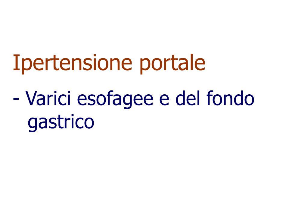 Ipertensione portale - Varici esofagee e del fondo gastrico