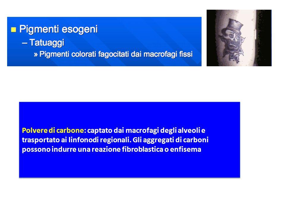 Polvere di carbone: captato dai macrofagi degli alveoli e trasportato ai linfonodi regionali.