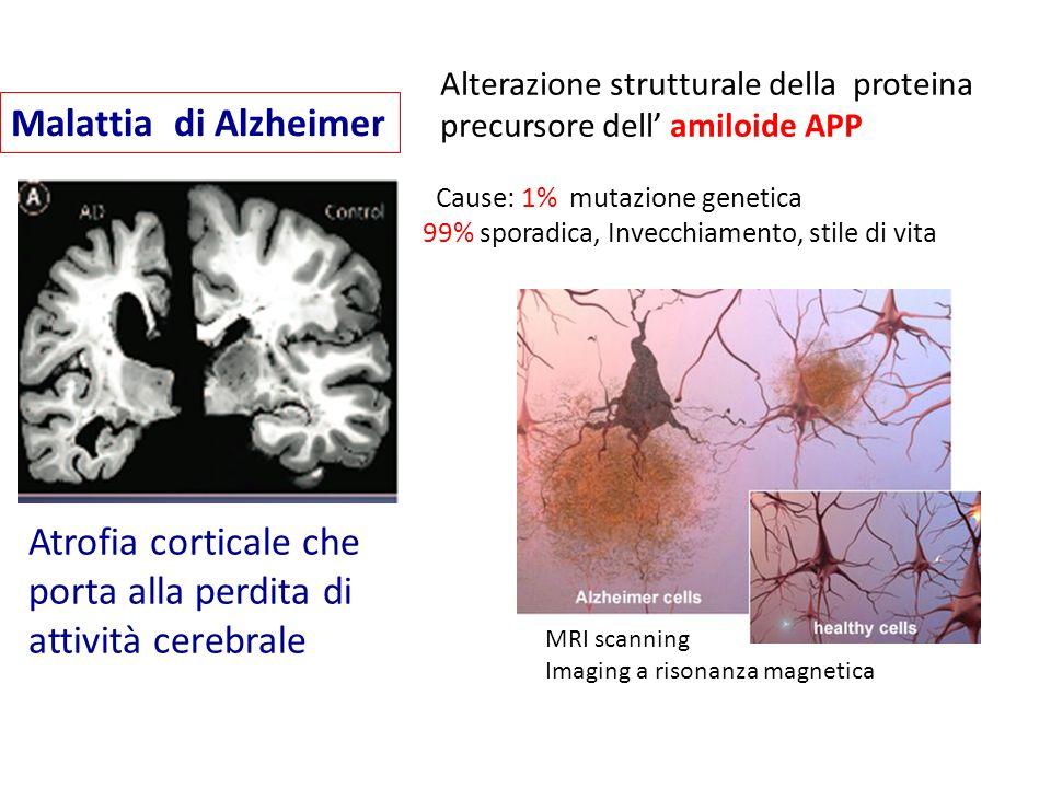 Atrofia corticale che porta alla perdita di attività cerebrale