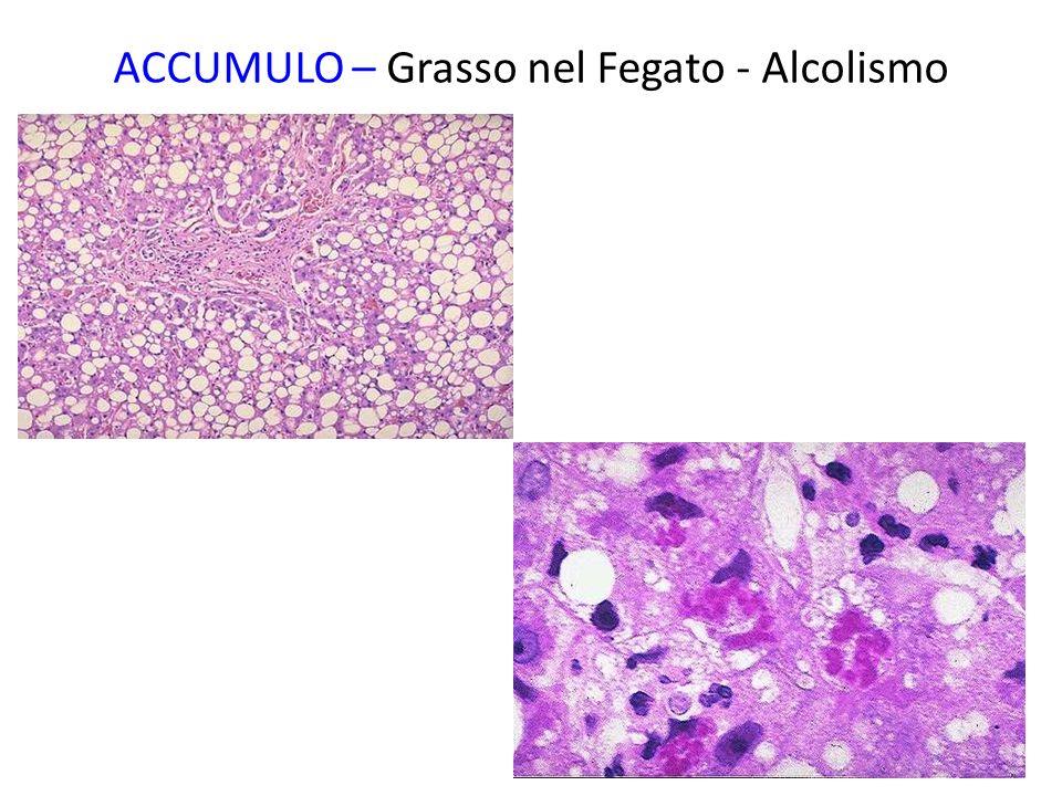 ACCUMULO – Grasso nel Fegato - Alcolismo